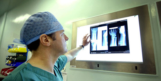a doctor looking at x-rays of wrist